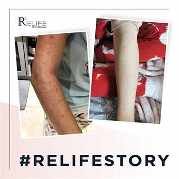 Relife Relizema Cream 40ml