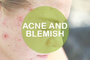 Acne and Blemish